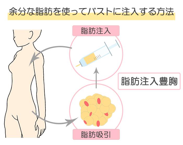 脂肪豊胸手術の施術内容